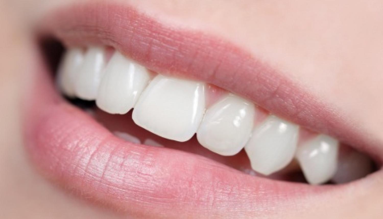 Comment avoir les dents blanches_0